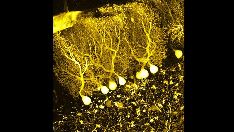 purkinje cells yellow