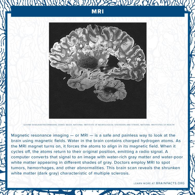 MRI Brain Byte