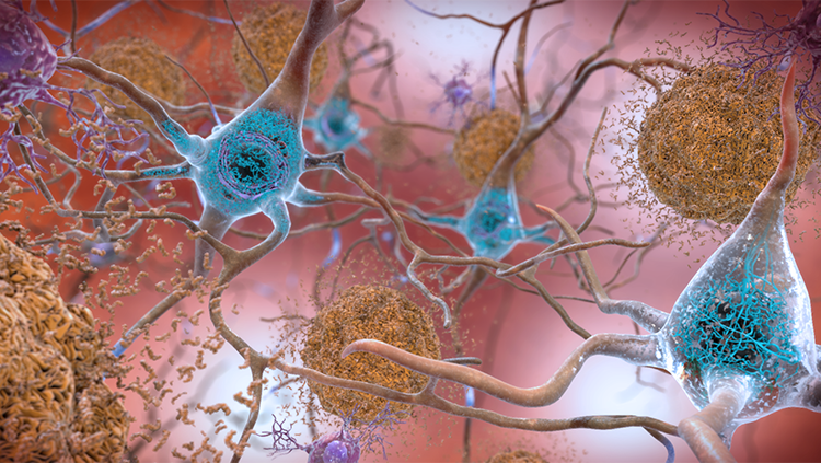Misfolded proteins clump together among and on top of neurons