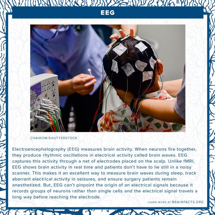 EEG brain byte