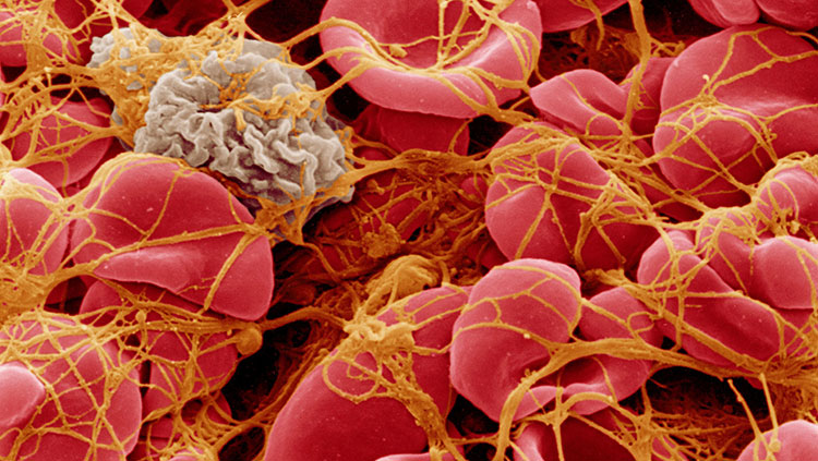 SEM of blood corpuscles in clot