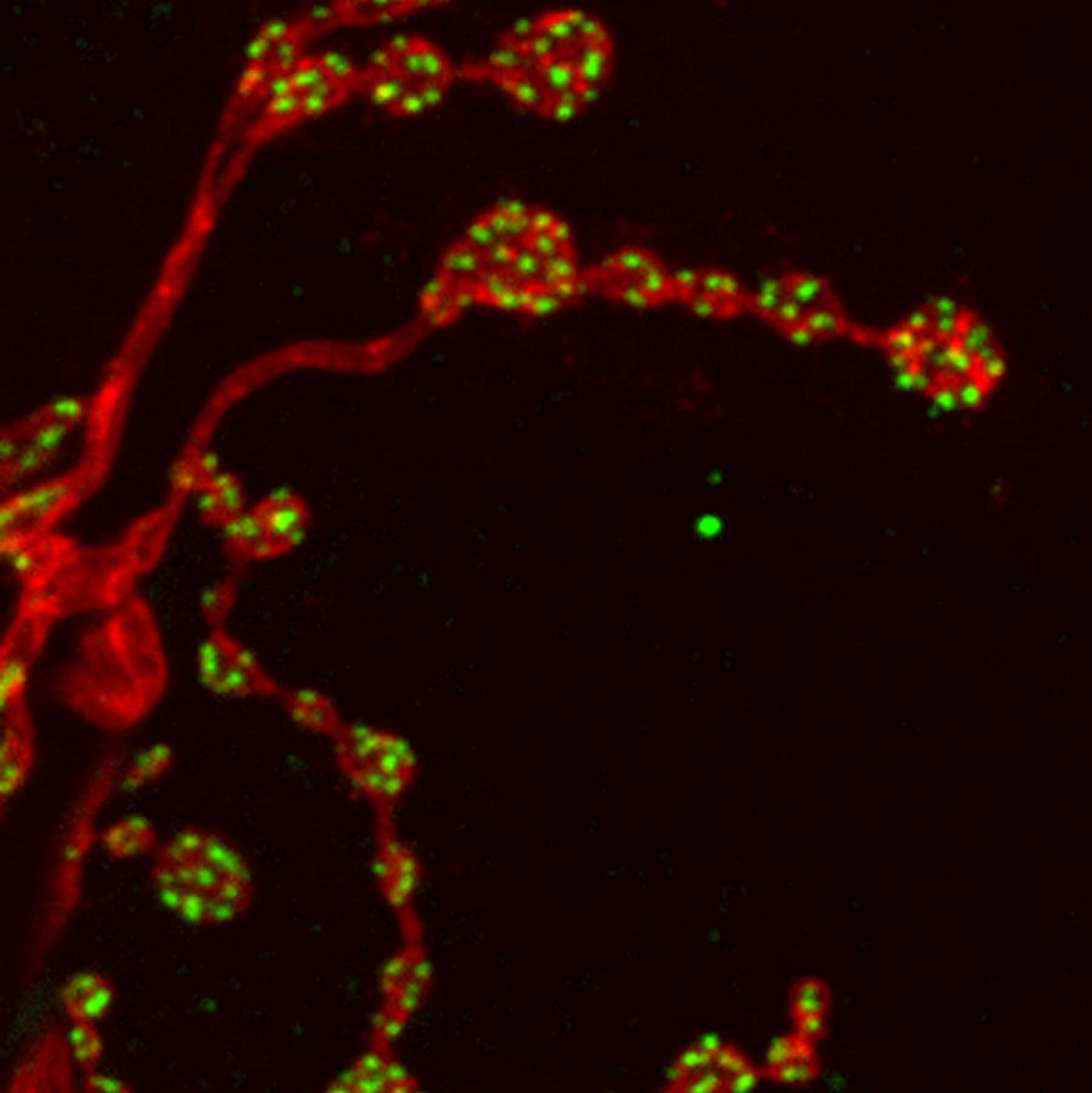 Synaptic boutons in the muscle of a larval fruit fly