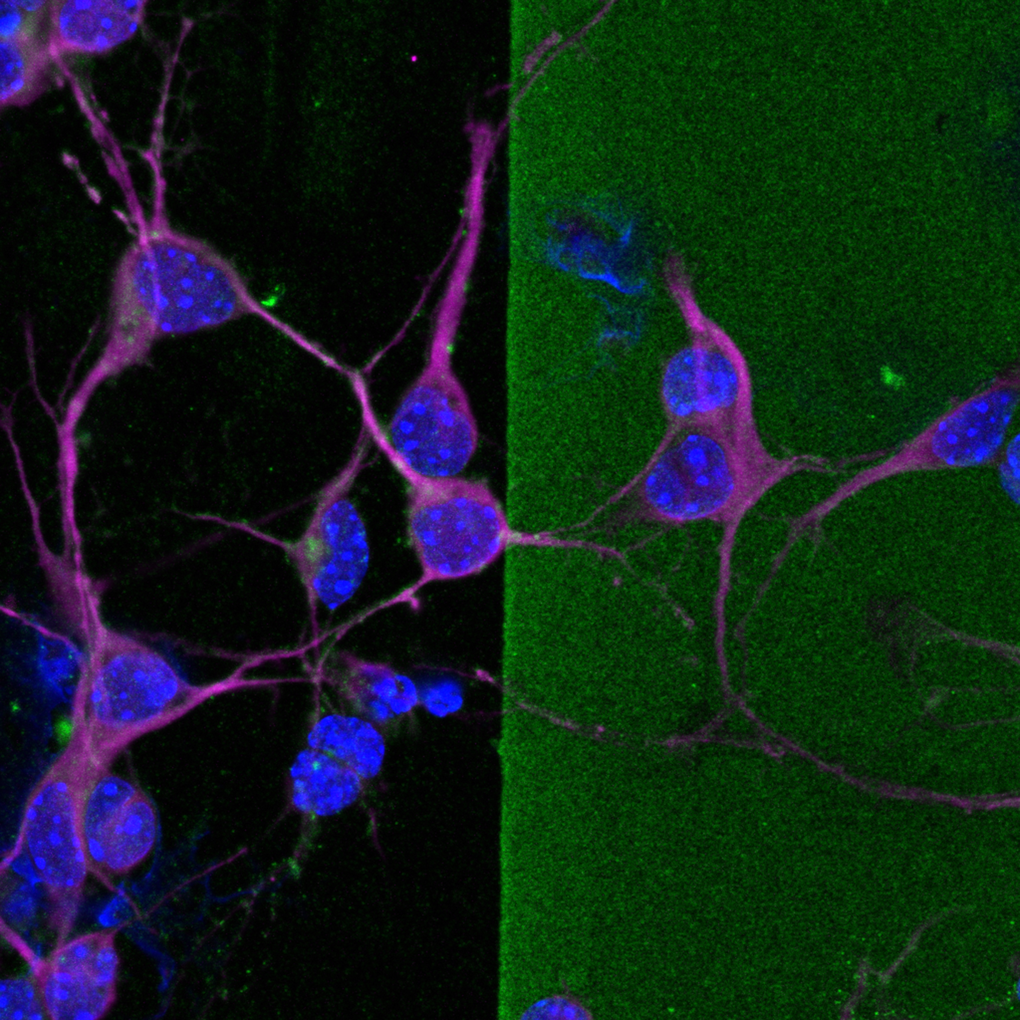 MAP2+ (magenta) neurites from cultured immature cortical neurons extending into a stripe of chondroitin sulfate proteoglycans (CSPGs; green) treated with chondroitinase ABC (chABC), an enzyme that abolishes CSPGs